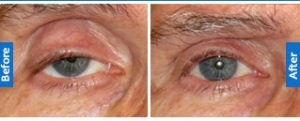 Is your eyelid twitching? - Sydney Ophthalmic Specialists