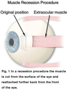 Strabismus surgery. Photo courtesy of AAPOS.