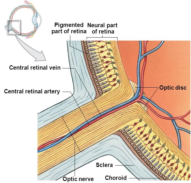 Retinal Vascular Disorders - Sydney Ophthalmic Specialists