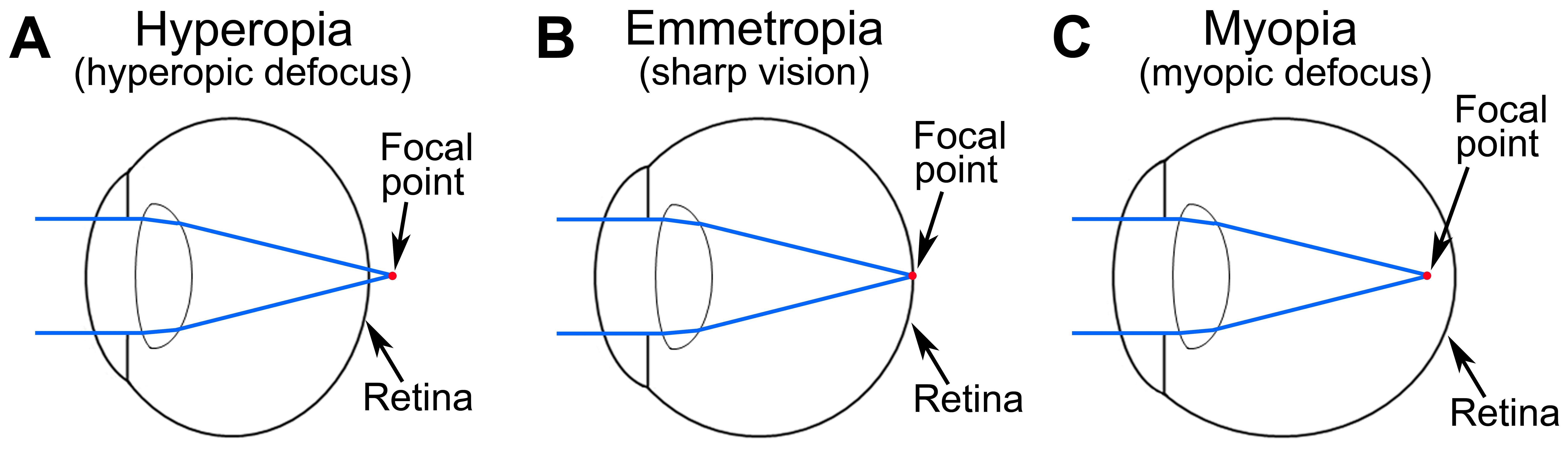 Hyperopia - Back To Basics