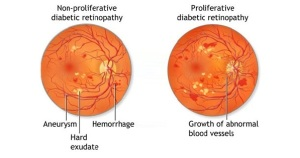 image of two retinal images showing the different types of diabetic retinopathy. Image courtesy of http://www.isotineeyedrops.com
